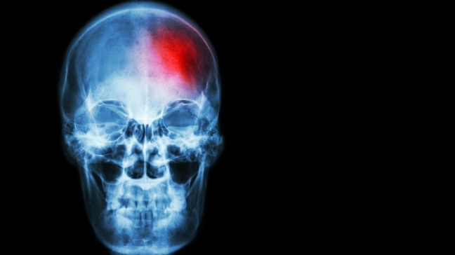 Learn F.A.S.T. to spot signs of stroke