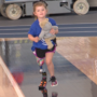 5 year old Madalyn learns to run on new leg in mobility clinic
