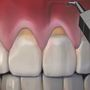 Pinhole gum rejuvenation: Receding gums can be restored, now with less pain